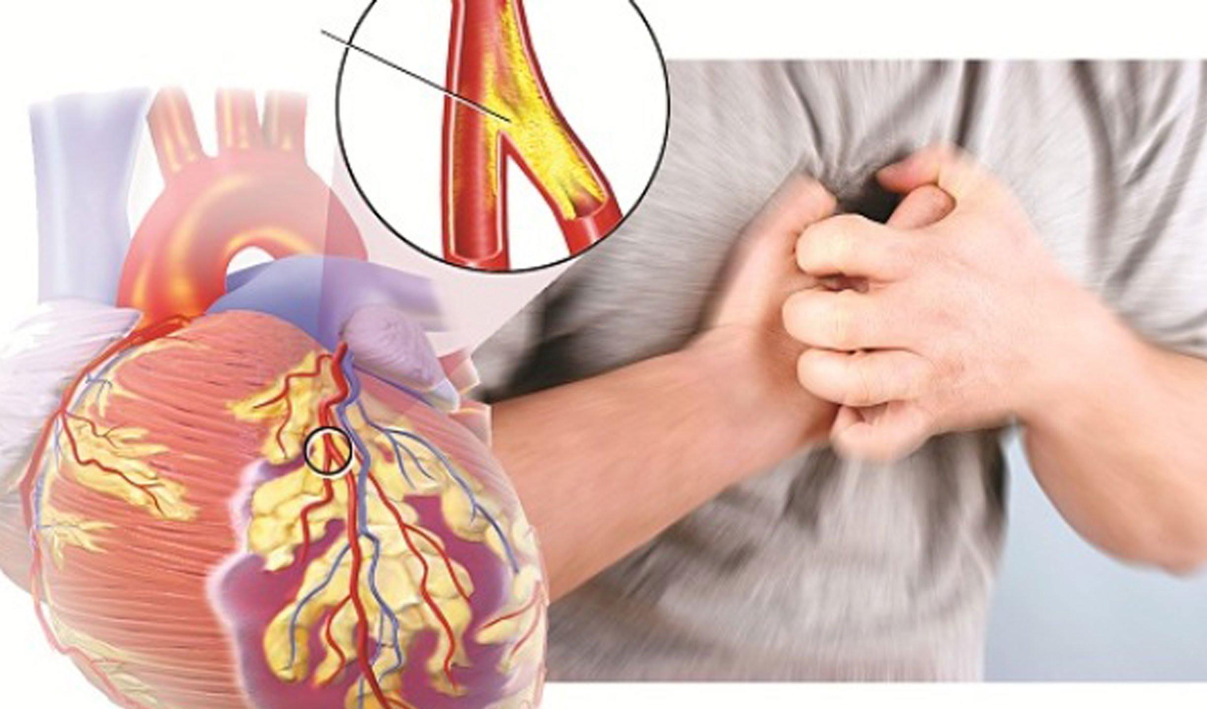 Bệnh mạch vành mang đến những cơn đau tim khó chịu
