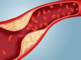 Các biến chứng bệnh máu nhiễm mỡ