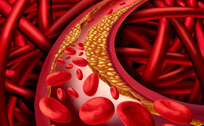 Mỡ máu cao là bệnh gì?